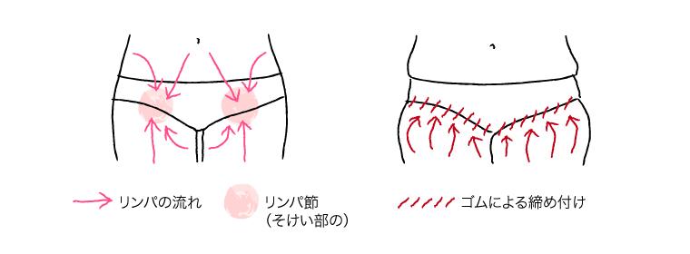 下着のゴムの締め付けによるむくみ
